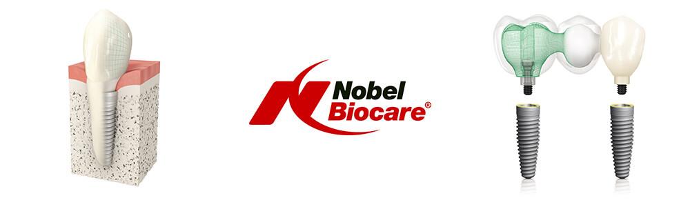 Crown_NobelReplace2