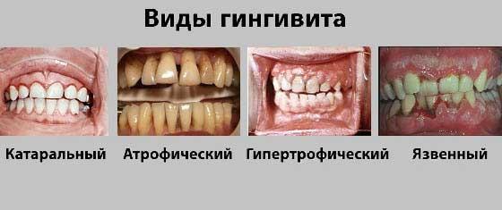КЛАССИФИКАЦИЯ ГИНГИВИТА