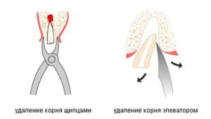 типы удаления корня зуба