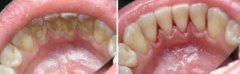 chistka_zubov_ultrazvukom