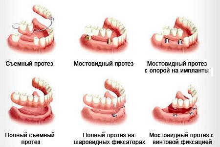 методы  реабилитации дефектов зубного ряда